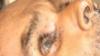 మానవత్వం మంటగలిసింది: సర్కార్ ఆస్పత్రి మంచంపై రోగి, చీమలుపారుతూ, సీఎం సీరియస్