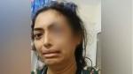 గల్ఫ్ లో బెంగళూరు మహిళకు టార్చర్.. భర్త అరెస్టు: సోషల్ మీడియా ద్వారా సహాయం కోరి..!