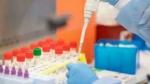 అమెరికా ఆమోదించిన తొలి యాంటీవైరల్ డ్రగ్ 'రెమిడెసివిర్': సత్ఫలితాలే కారణం!