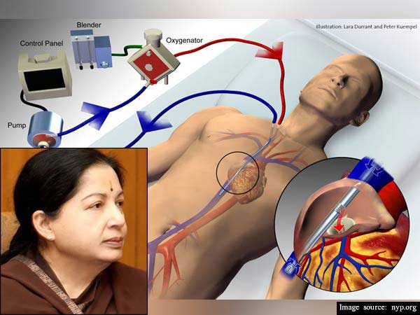 Chennai: Tamil Nadu chief minister who suffered a cardiac arrest
