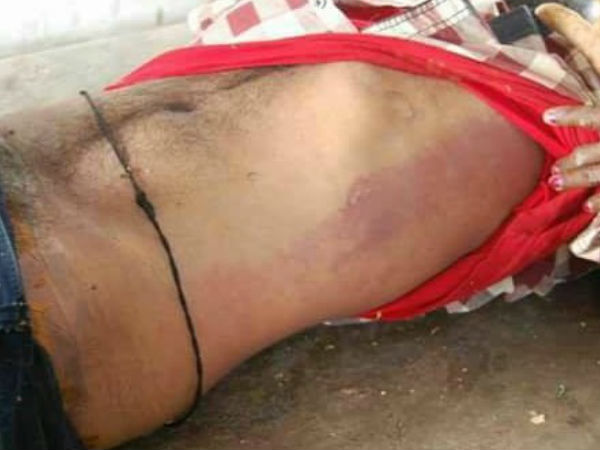 Repost Martem Manthani Madhukars S Dead Body