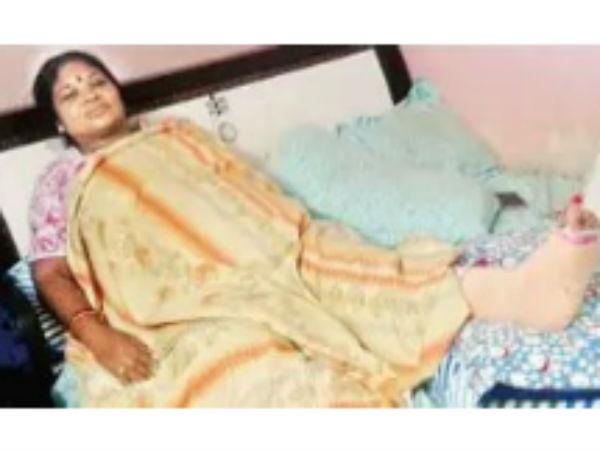 Giddi Eswari Injured A Small Accident