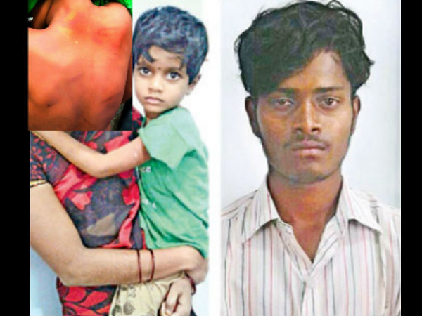 Hyderabad 6 Year Old Girl Brutally Beaten Up Mother S Lover
