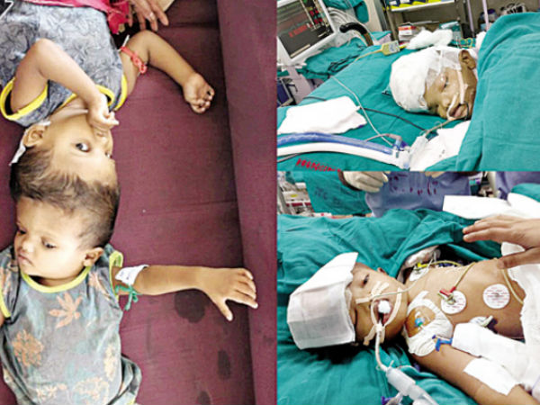 Odisha Twins Joined At Head Separated After 16 Hour Long Surgery