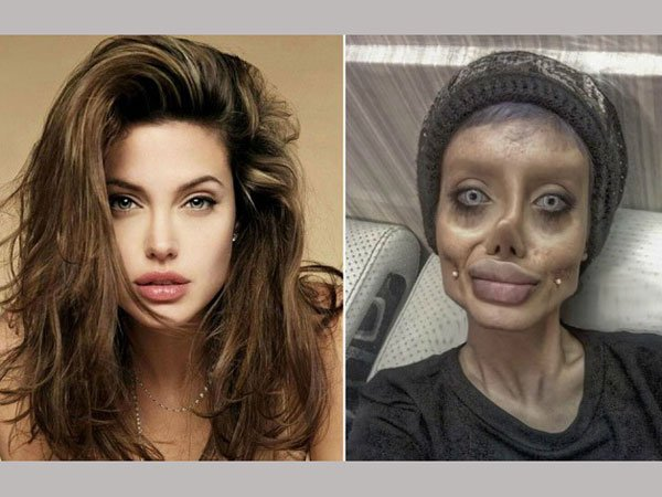 bizarre: 19-year-old got 50 surgeries to look like Angelina Jolie. Now trolls are calling her zombie