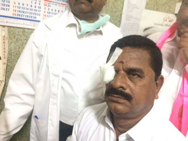 Cong Mla Flings Headphone Telangana Assembly Injures Counci