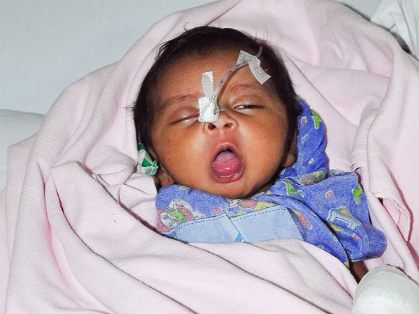1-month-old daughter of a daily wage worker needs an urgent heart surgery