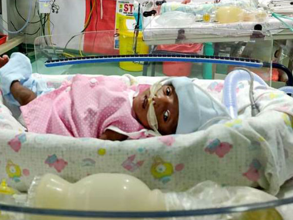30 days girl child born prematurely and on ventilator