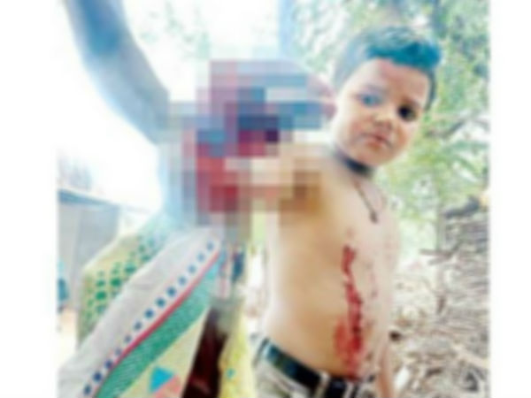 cell phone blasted in a boys hand in kurnool