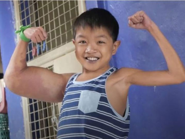 This young kid dubbed 'Popeye' after mystery condition gives him huge biceps