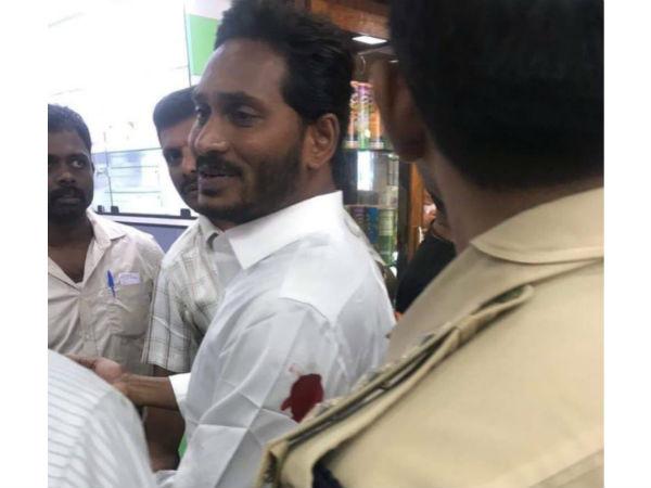 జగన్పై దాడి మీద రివర్స్: 'రిమాండ్ రిపోర్ట్పై టీడీపీ ఏం చెబుతుంది, ఉలిక్కిపాటు ఎందుకు'