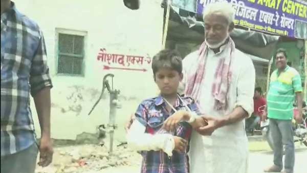 Negligence : Plaster Right Hand of Child Who Suffered Fracture On Left Hand