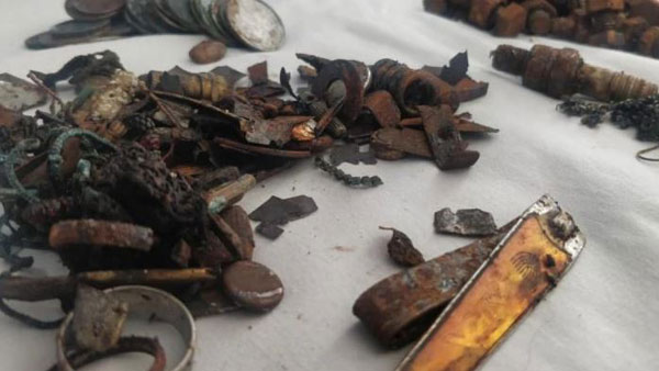 452 metal items found in ahmedabad man stomach