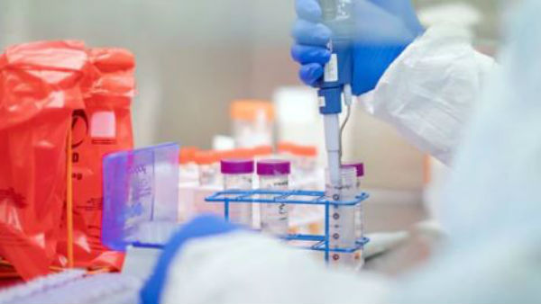 Coronavirus: 35 ప్రైవేట్ ల్యాబ్లకు ఐసీఎంఆర్ పర్మిషన్, తెలంగాణలో ఐదు ల్యాబ్స్..
