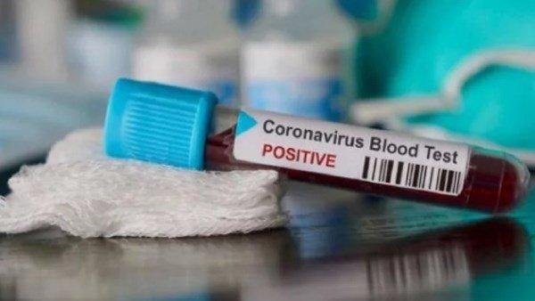 woman ci in chittoor tested coronavirus positive officials shut down police station