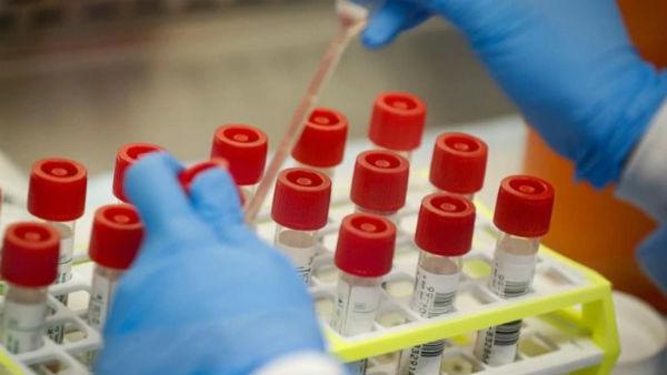 Coronavirus: కోవిడ్ -19 ల్యాబ్ లో కలకలం, డాక్టర్లు, నర్సులకు పాజిటివ్, 55 వేల మందికి పరీక్షలు !