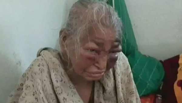 BJP workers mother Shova Majumdar who was allegedly beaten by TMC dies