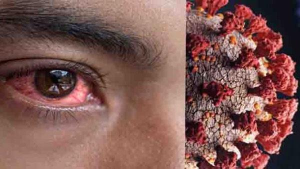 షాకింగ్: కొవిడ్ రోగులకు black fungus -మరో మహహ్మారి విజృంభణ -పెరిగిన మ్యూకర్మైకోసిస్ కేసులు